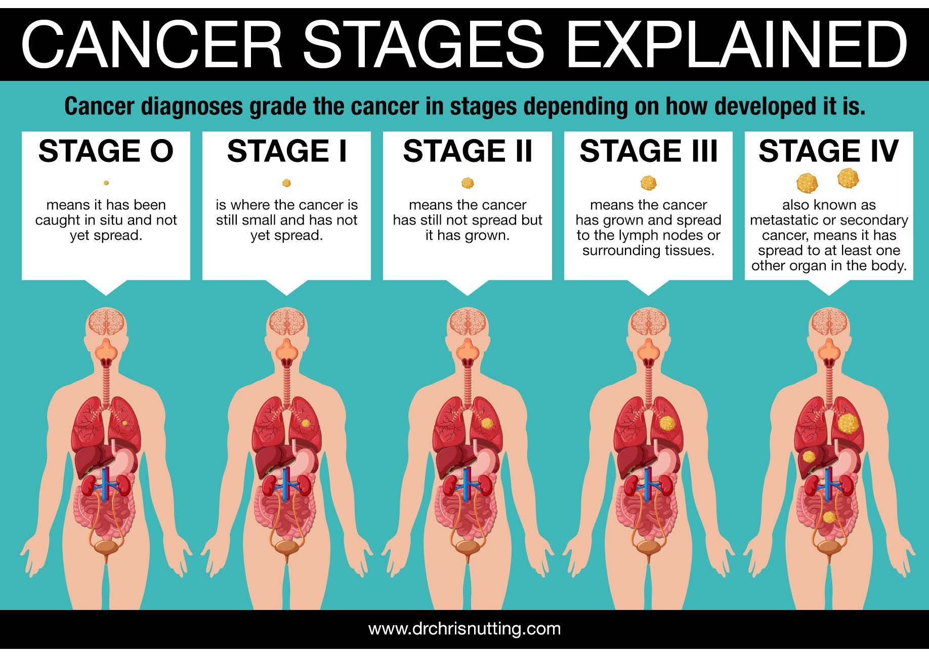 cancerstages